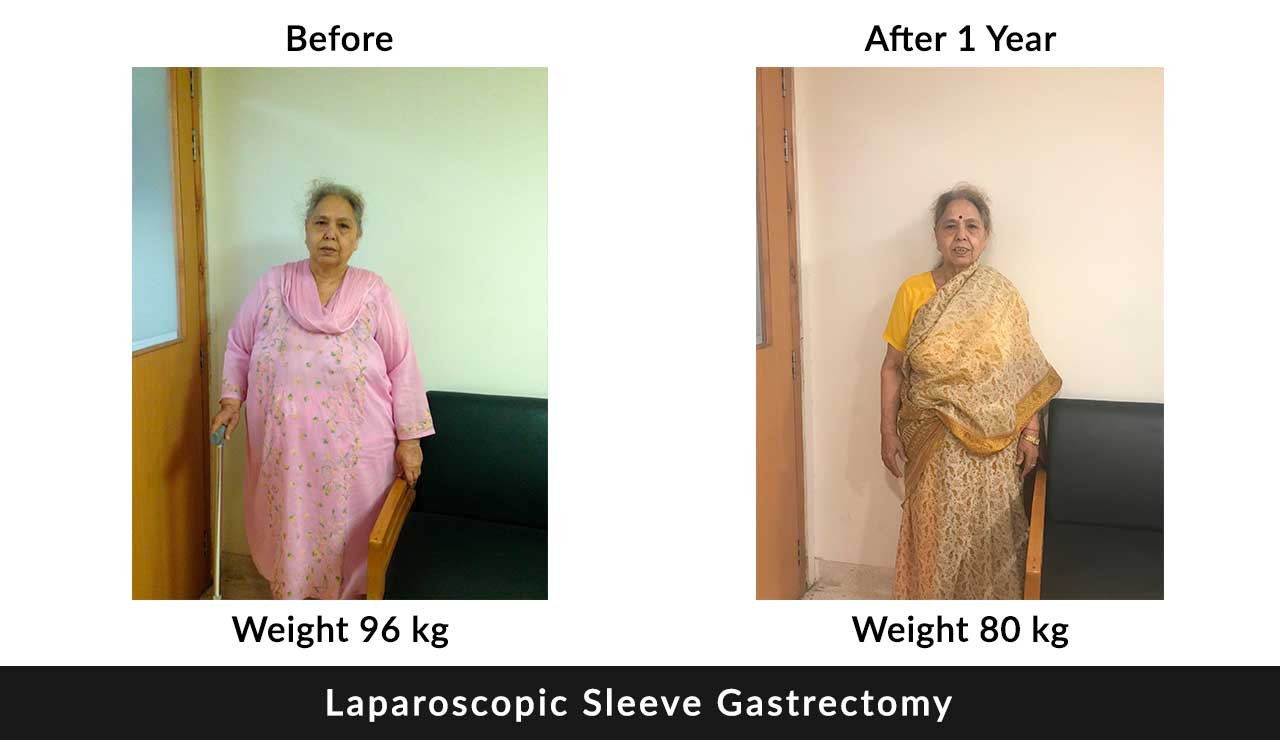 Laparoscopic Sleeve Gastrectomy in india