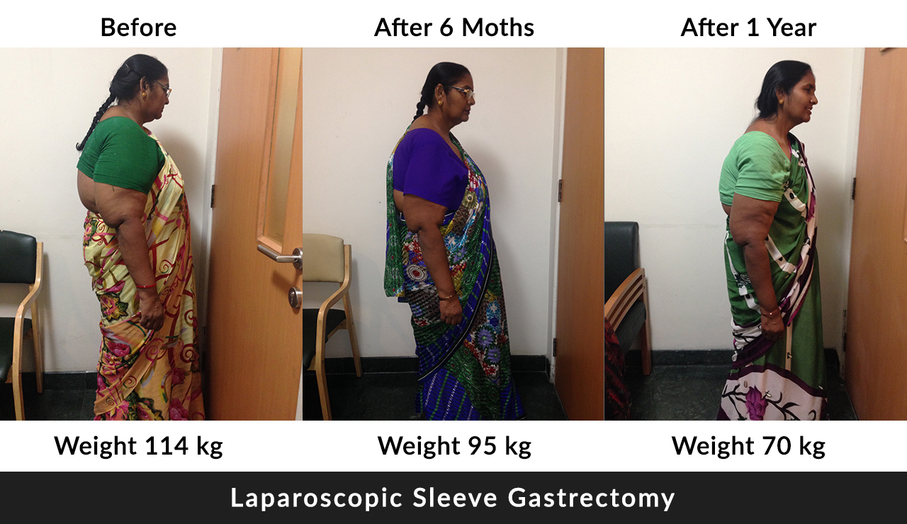 weight loss treatment in India