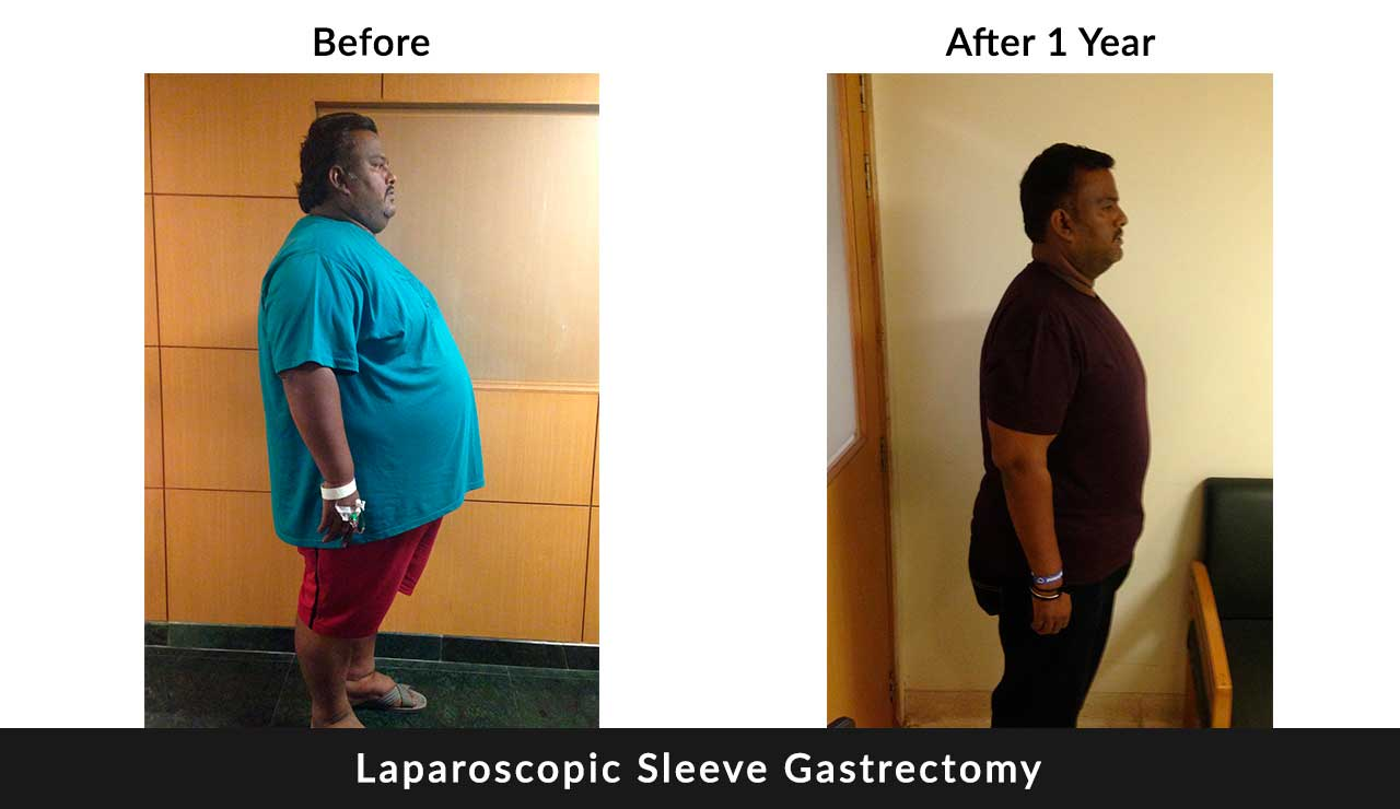 Laparoscopic Sleeve Gastrectomy surgery in delhi