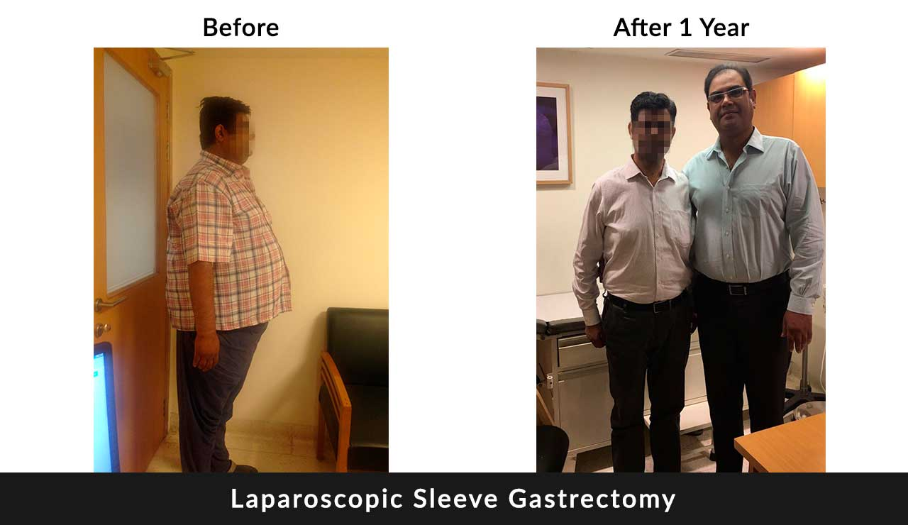 Weight loss surgery in dlhi