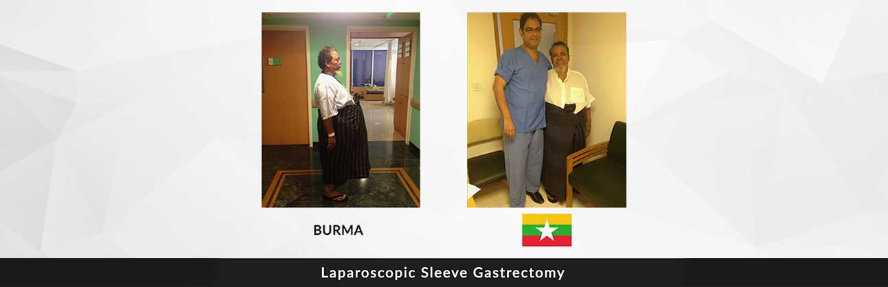 bariatric surgeon delhi